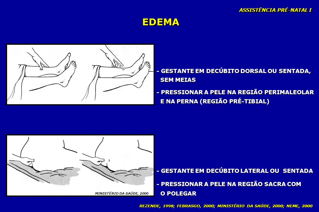 EDEMA - GESTANTE EM DECÚBITO DORSAL OU SENTADA, SEM MEIAS