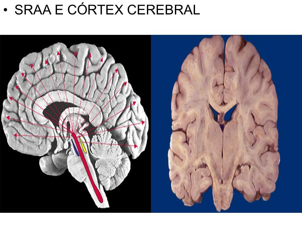 SRAA E CÓRTEX CEREBRAL