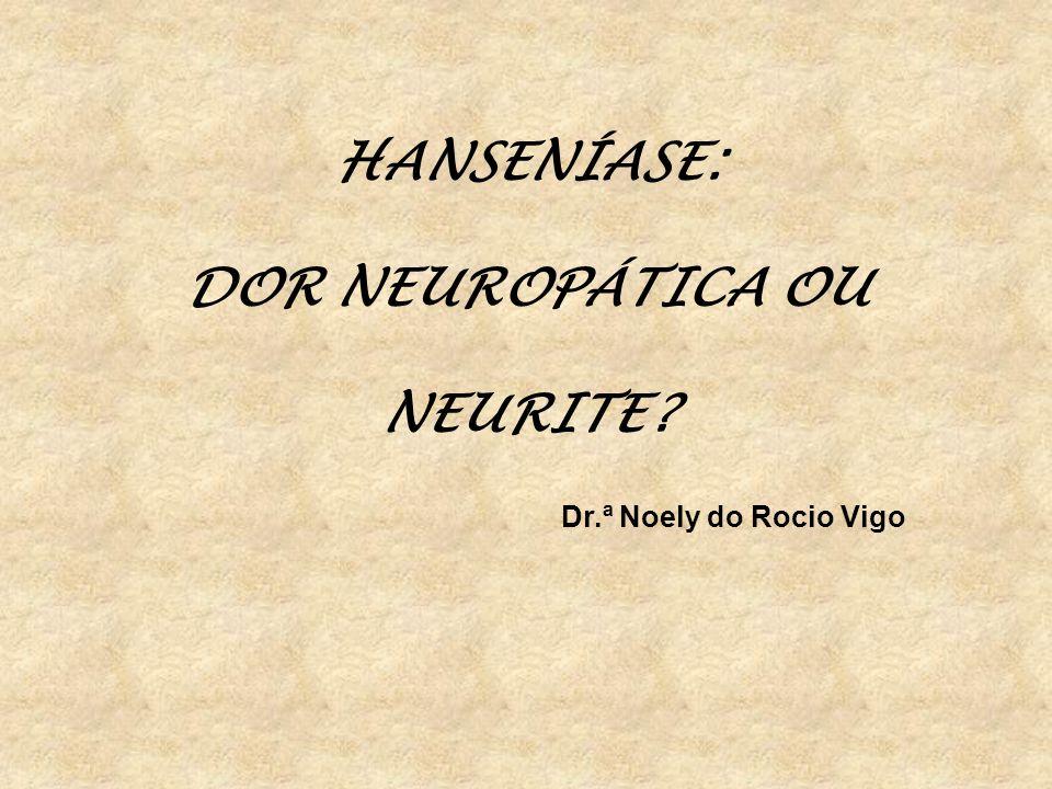 HANSENÍASE: DOR NEUROPÁTICA OU NEURITE