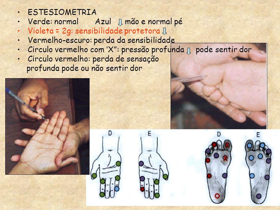 ESTESIOMETRIAVerde: normal Azul mão e normal pé. Violeta = 2g: sensibilidade protetora. Vermelho-escuro: perda da sensibilidade.