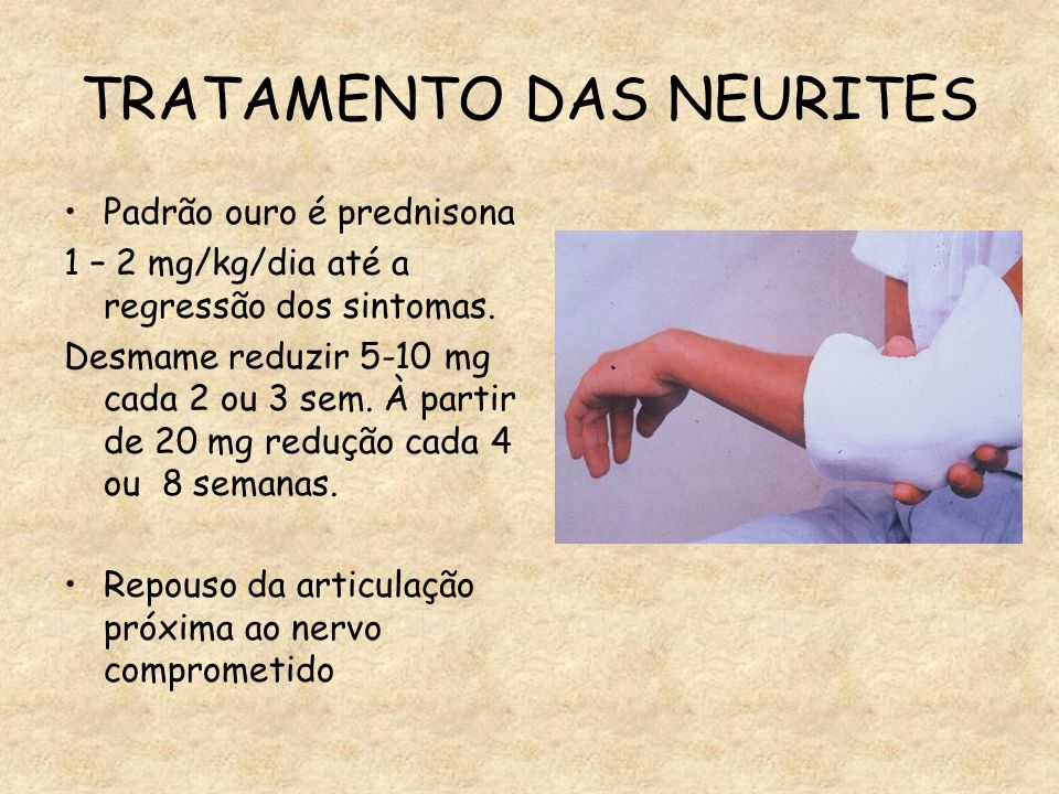 TRATAMENTO DAS NEURITES