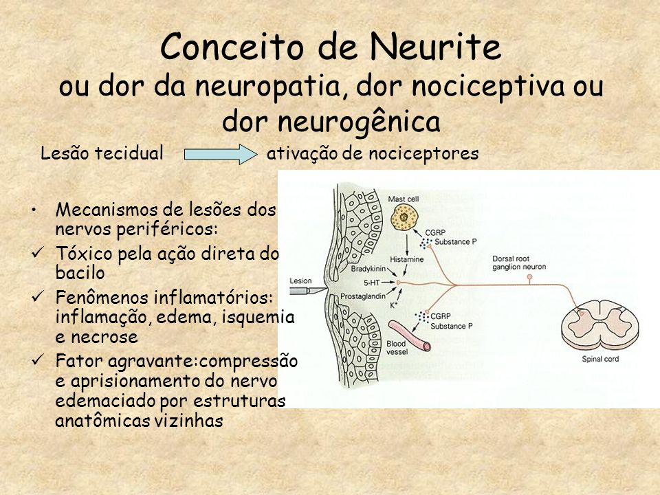 Conceito de Neurite ou dor da neuropatia, dor nociceptiva ou dor neurogênica