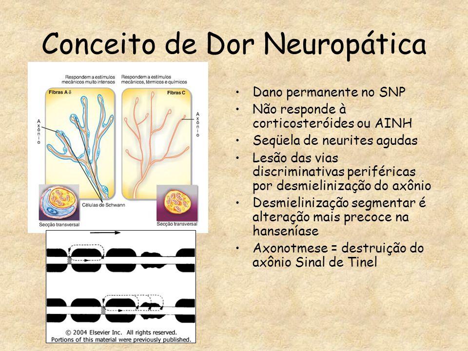 Conceito de Dor Neuropática
