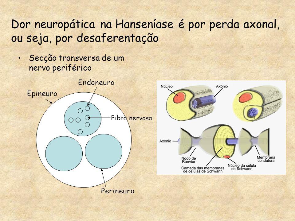 Dor neuropática na Hanseníase é por perda axonal,