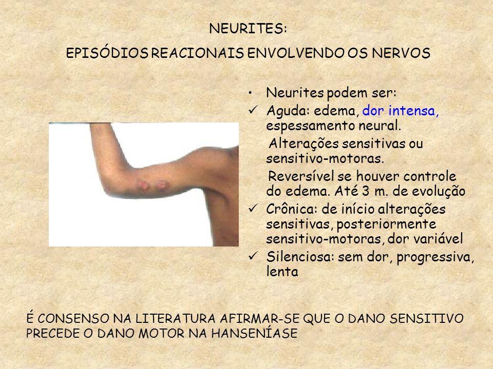 EPISÓDIOS REACIONAIS ENVOLVENDO OS NERVOS
