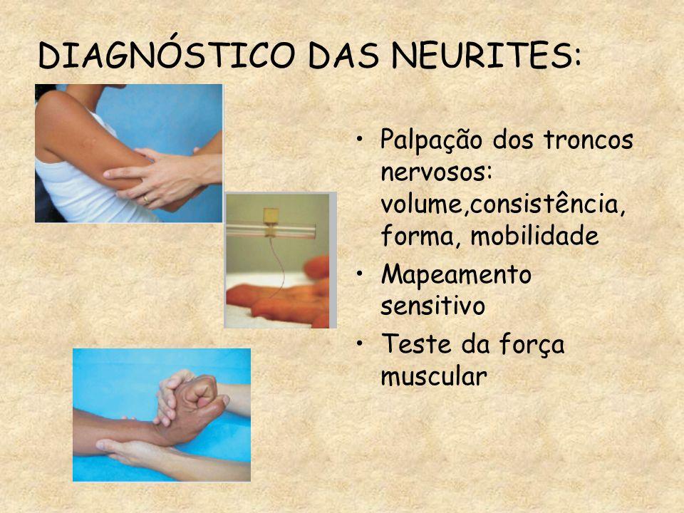 DIAGNÓSTICO DAS NEURITES: