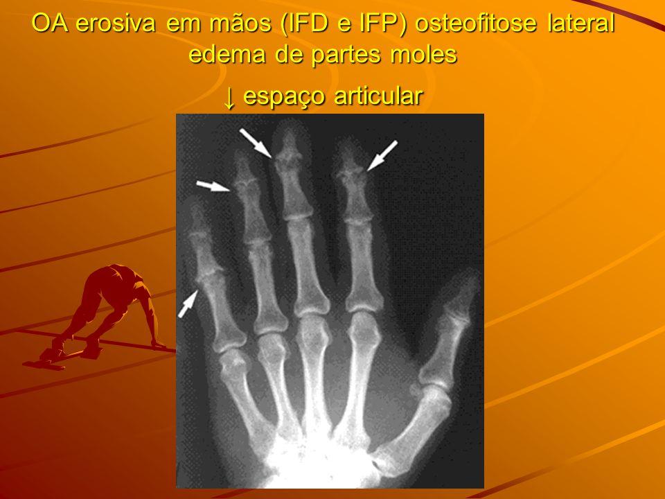 OA erosiva em mãos (IFD e IFP) osteofitose lateral edema de partes moles ↓ espaço articular