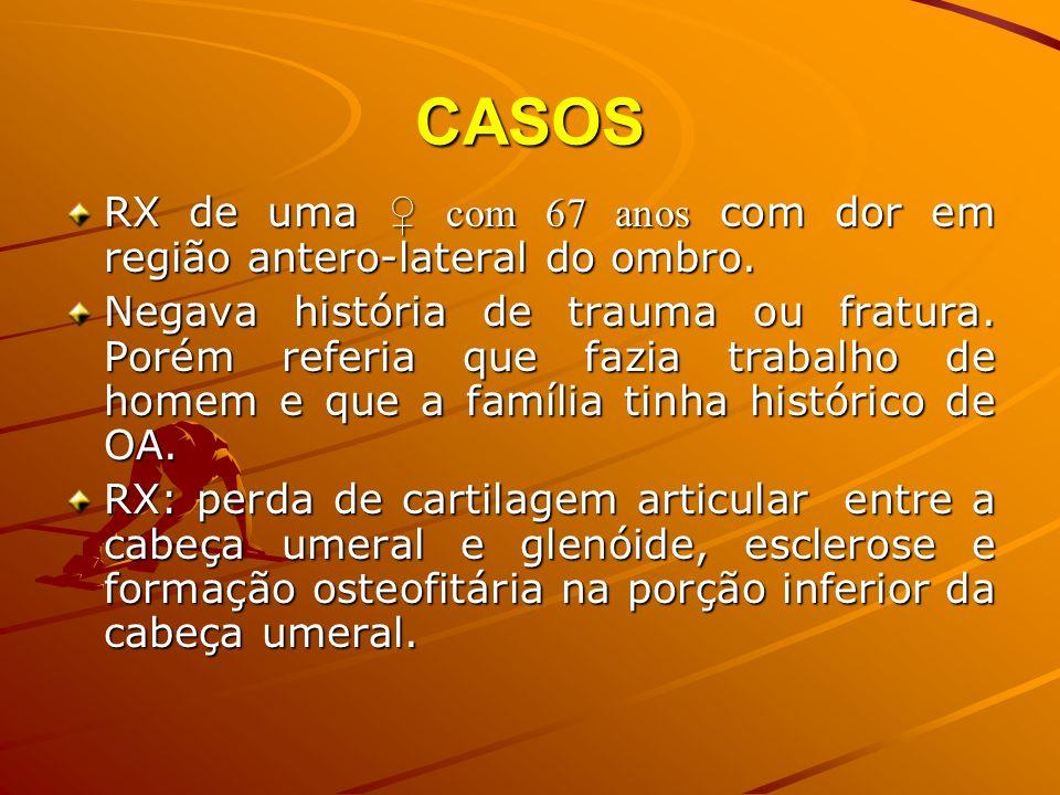 CASOSRX de uma ♀ com 67 anos com dor em região antero-lateral do ombro.