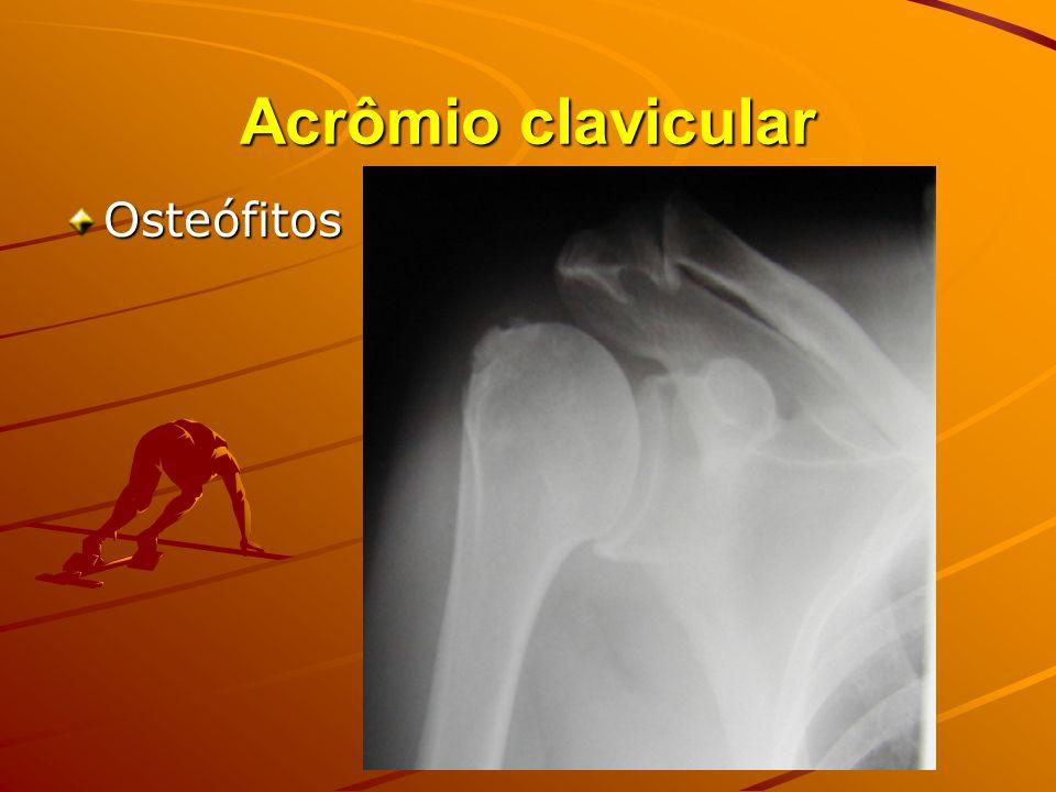 Acrômio clavicular Osteófitos