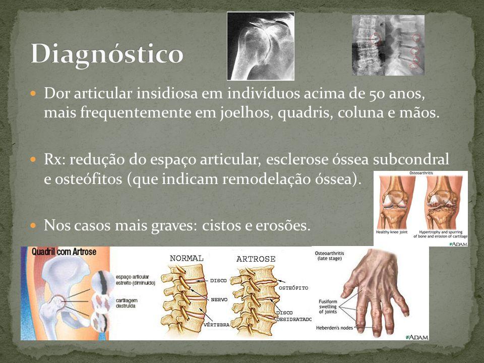 DiagnósticoDor articular insidiosa em indivíduos acima de 50 anos, mais frequentemente em joelhos, quadris, coluna e mãos.