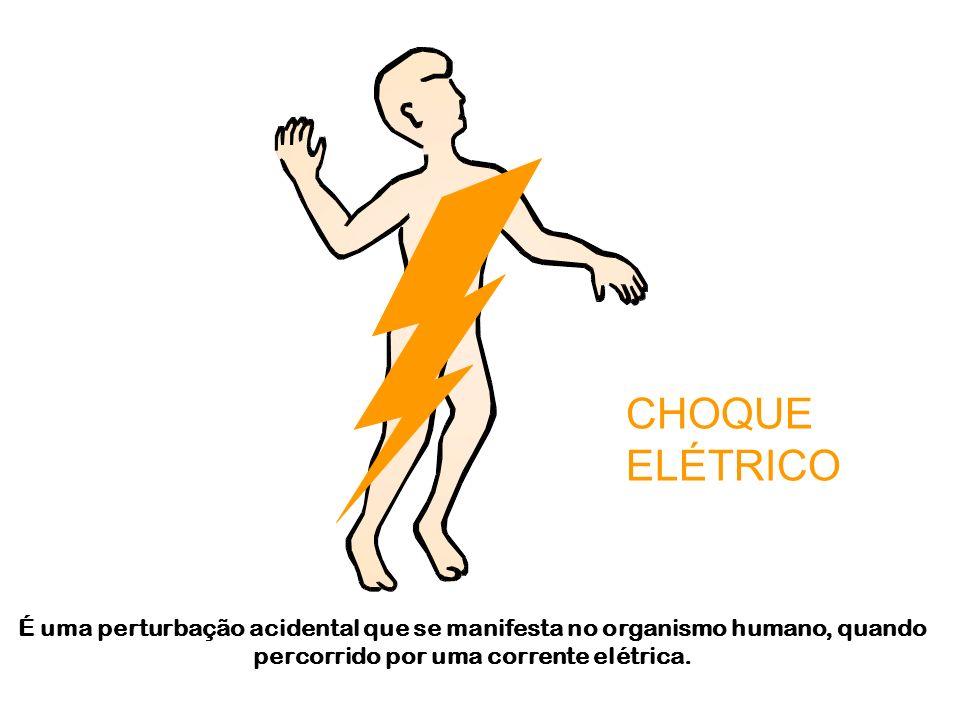 CHOQUE ELÉTRICO.