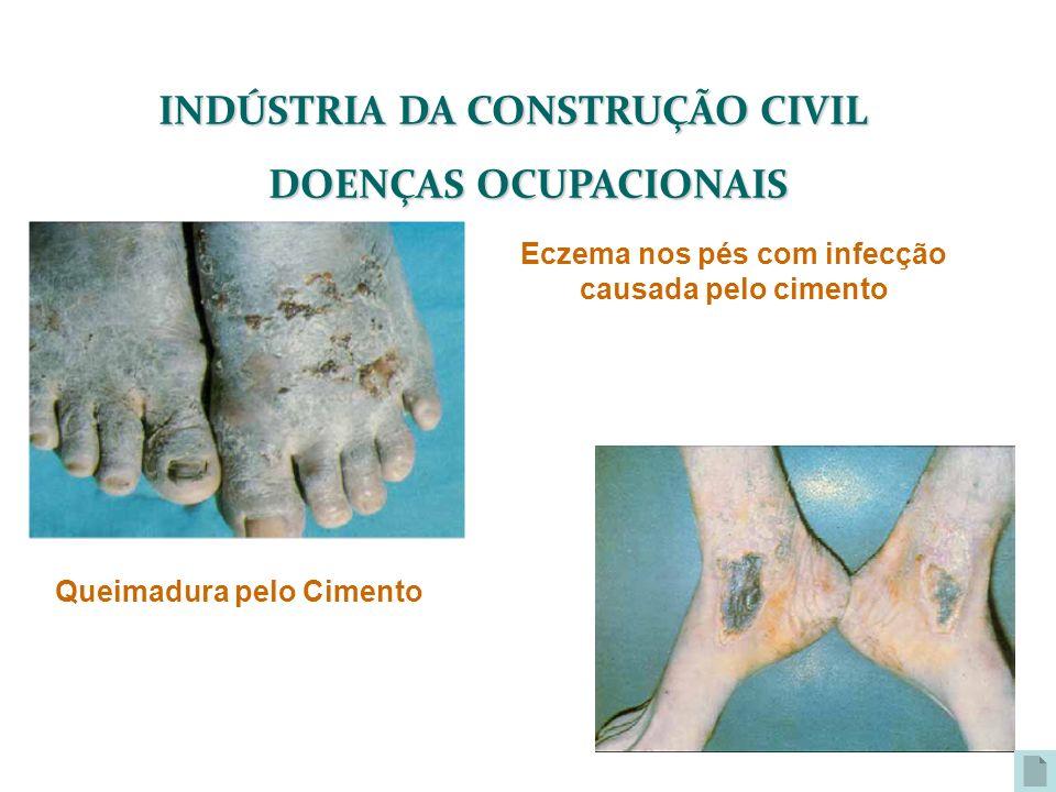 INDÚSTRIA DA CONSTRUÇÃO CIVIL DOENÇAS OCUPACIONAIS