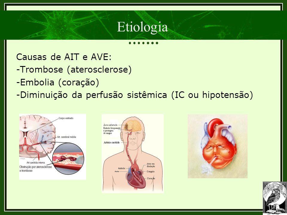 Etiologia Causas de AIT e AVE: Trombose (aterosclerose)