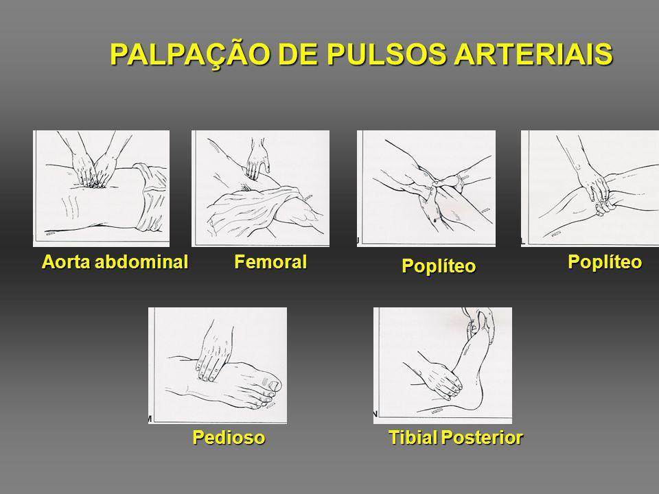 PALPAÇÃO DE PULSOS ARTERIAIS