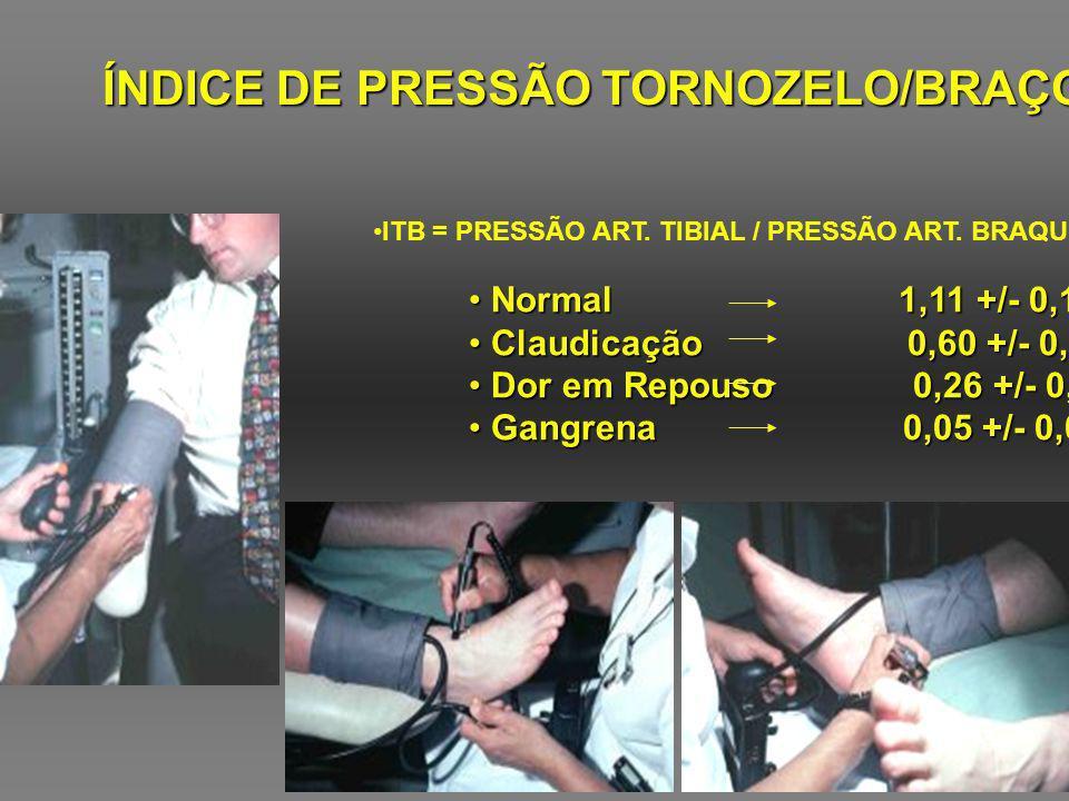 ÍNDICE DE PRESSÃO TORNOZELO/BRAÇO