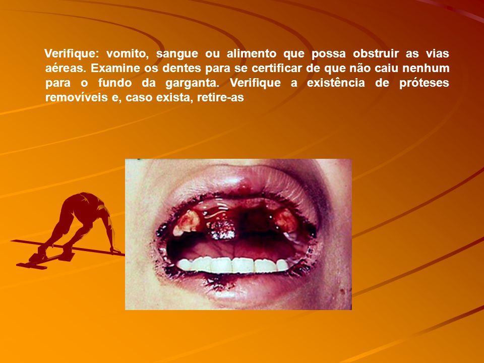 Verifique: vomito, sangue ou alimento que possa obstruir as vias aéreas.