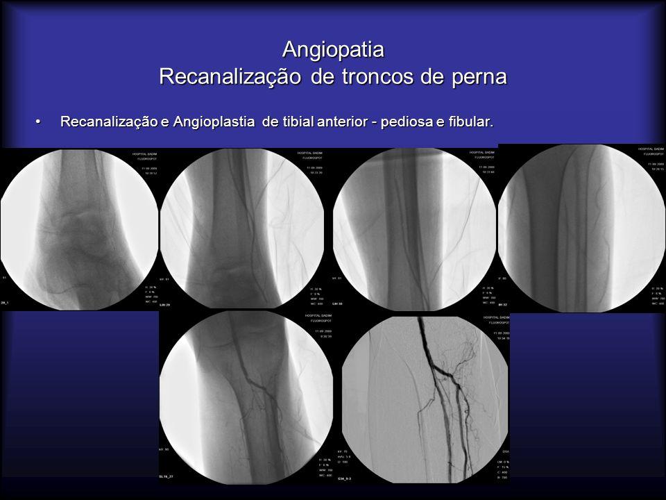 Angiopatia Recanalização de troncos de perna