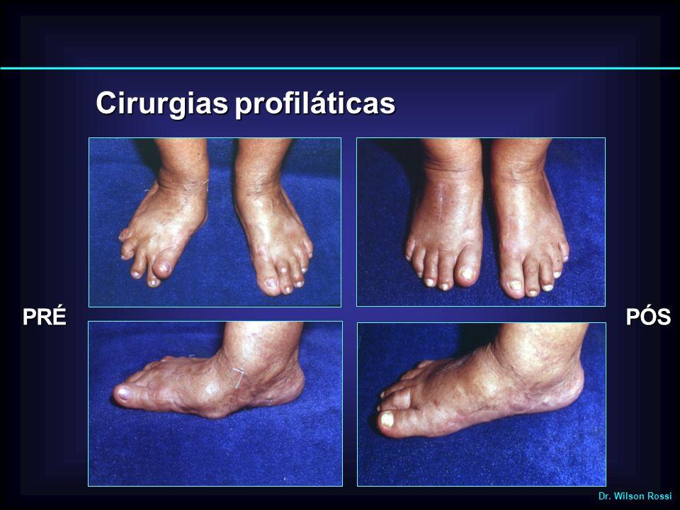 Cirurgias profiláticas