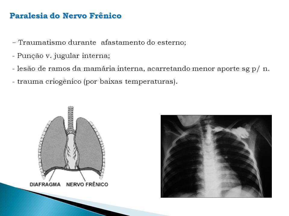 Paralesia do Nervo Frênico