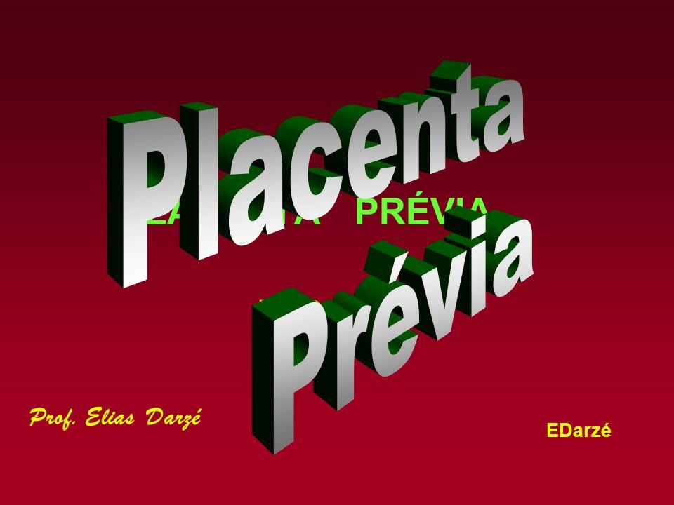 Placenta Prévia PLACENTA PRÉVIA P P Prof. Elias Darzé