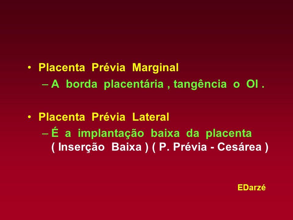 Placenta Prévia Marginal