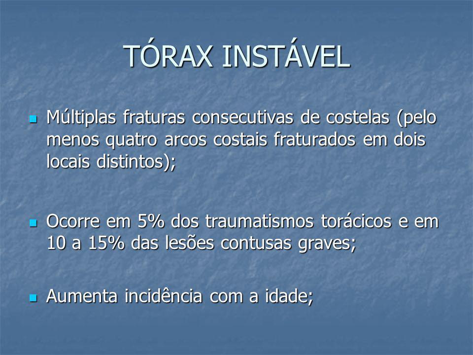 TÓRAX INSTÁVEL Múltiplas fraturas consecutivas de costelas (pelo menos quatro arcos costais fraturados em dois locais distintos);