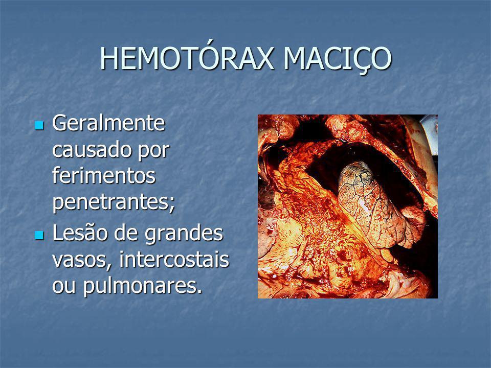 HEMOTÓRAX MACIÇO Geralmente causado por ferimentos penetrantes;
