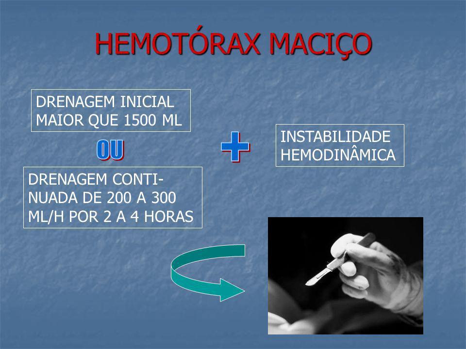 HEMOTÓRAX MACIÇO + OU DRENAGEM INICIAL MAIOR QUE 1500 ML
