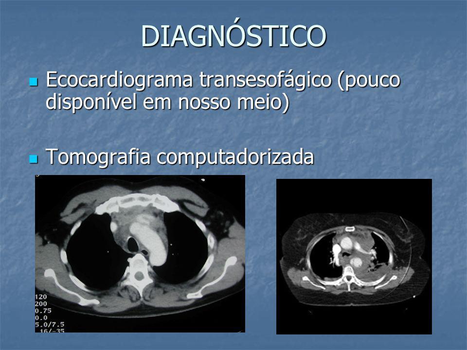 DIAGNÓSTICO Ecocardiograma transesofágico (pouco disponível em nosso meio) Tomografia computadorizada.