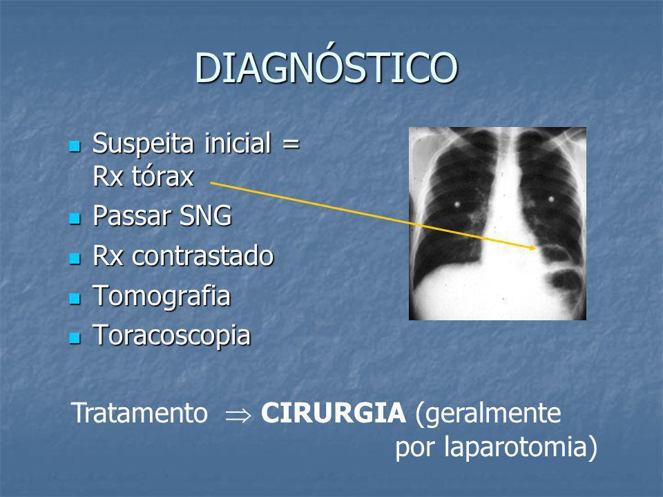 DIAGNÓSTICO Suspeita inicial = Rx tórax Passar SNG Rx contrastado