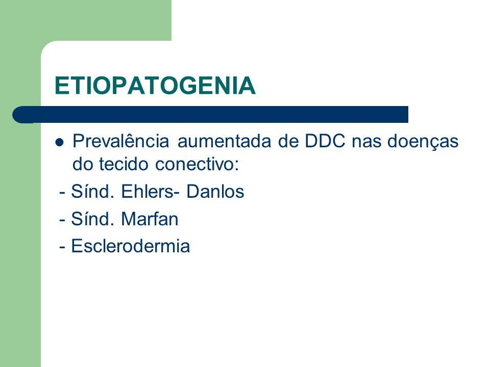 ETIOPATOGENIA Prevalência aumentada de DDC nas doenças do tecido conectivo: - Sínd. Ehlers- Danlos.