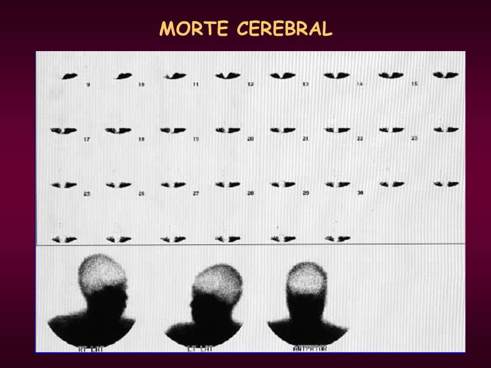 MORTE CEREBRAL