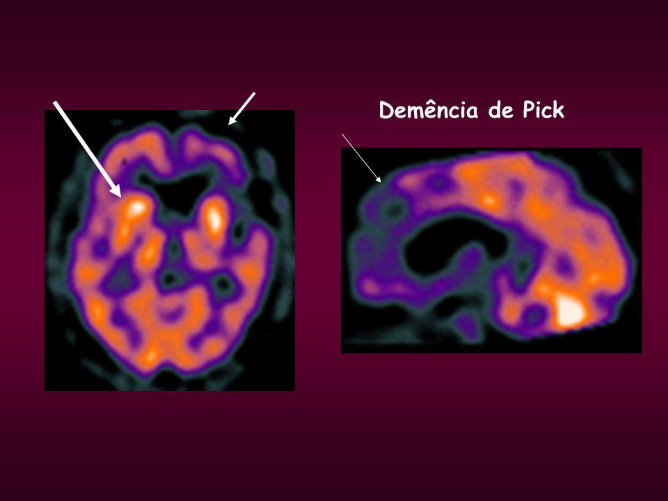 Demência de Pick