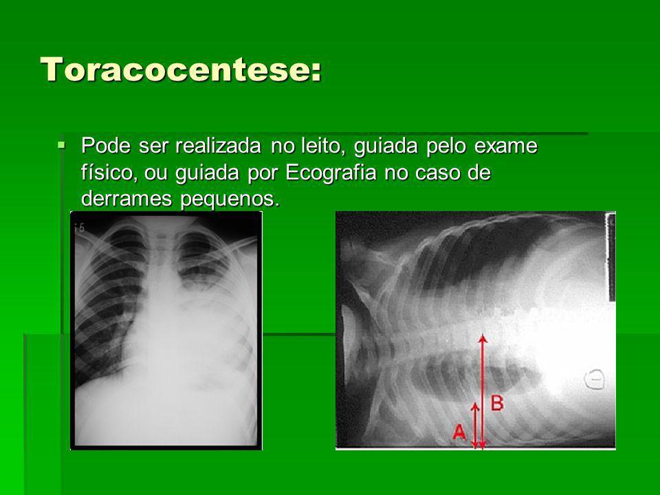 Toracocentese: Pode ser realizada no leito, guiada pelo exame físico, ou guiada por Ecografia no caso de derrames pequenos.