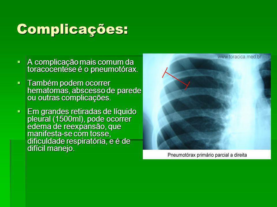 Complicações: A complicação mais comum da toracocentese é o pneumotórax. Também podem ocorrer hematomas, abscesso de parede ou outras complicações.