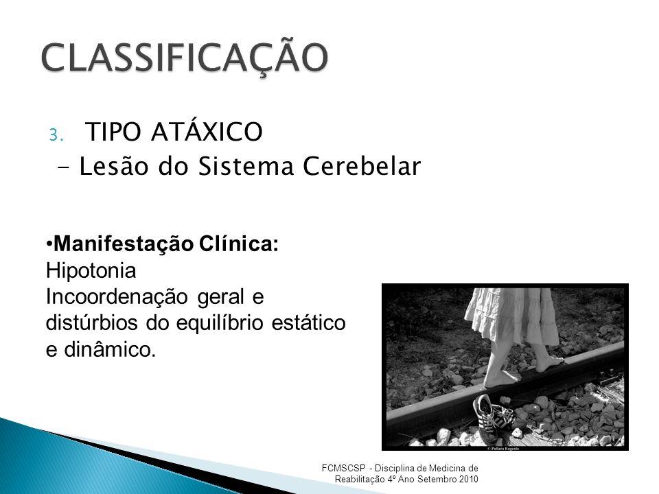 CLASSIFICAÇÃO TIPO ATÁXICO - Lesão do Sistema Cerebelar