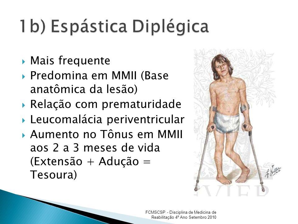 1b) Espástica Diplégica