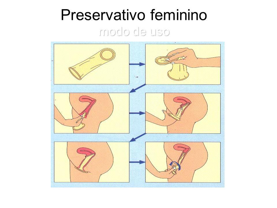 Preservativo feminino modo de uso