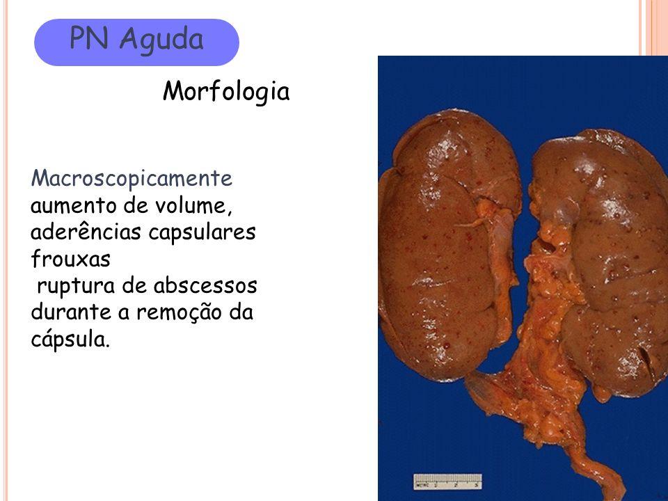 PN Aguda Morfologia Macroscopicamente aumento de volume,