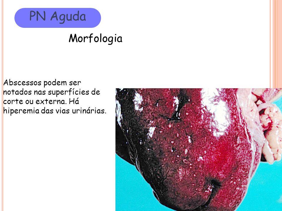 PN Aguda Morfologia. Abscessos podem ser notados nas superfícies de corte ou externa.