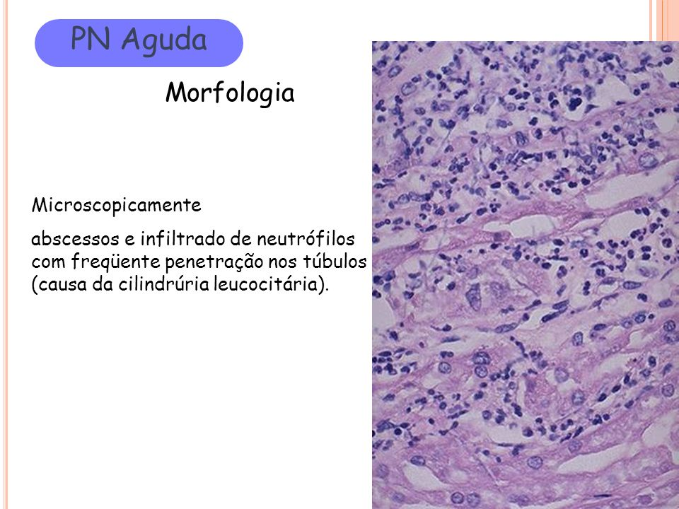 PN Aguda Morfologia Microscopicamente