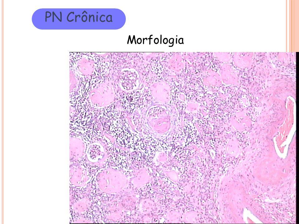 PN Crônica Morfologia