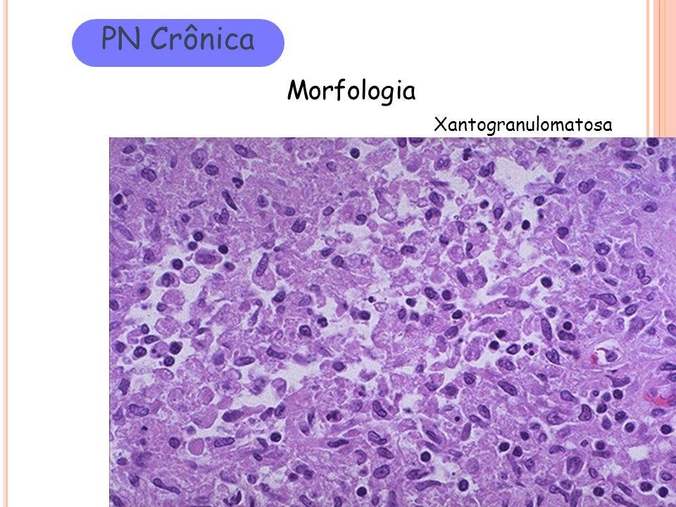PN Crônica Morfologia Xantogranulomatosa