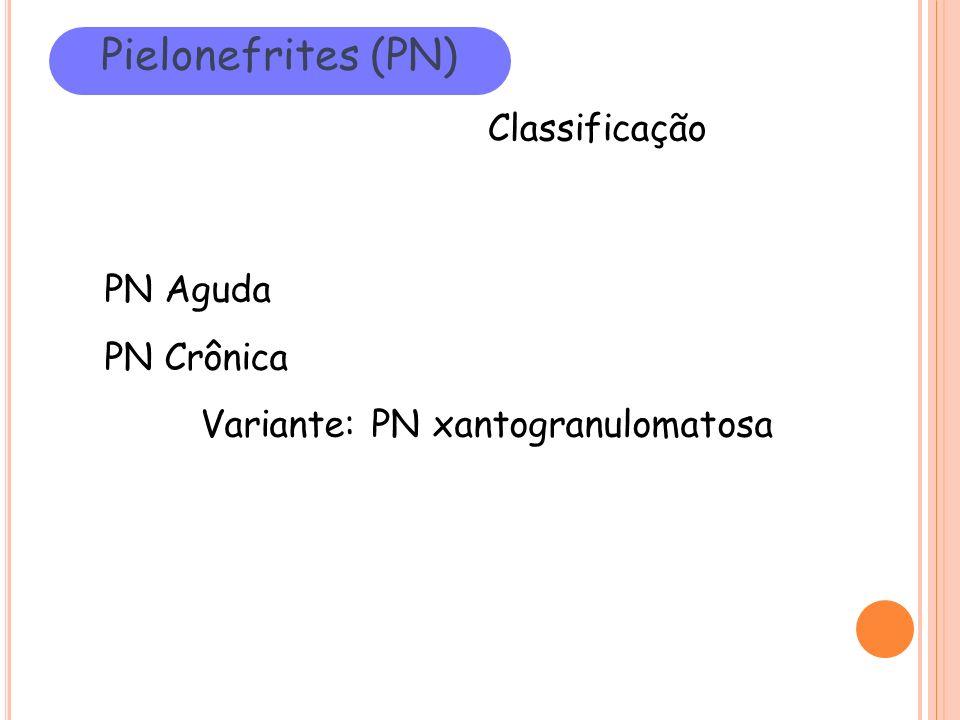 Pielonefrites (PN) Classificação PN Aguda PN Crônica