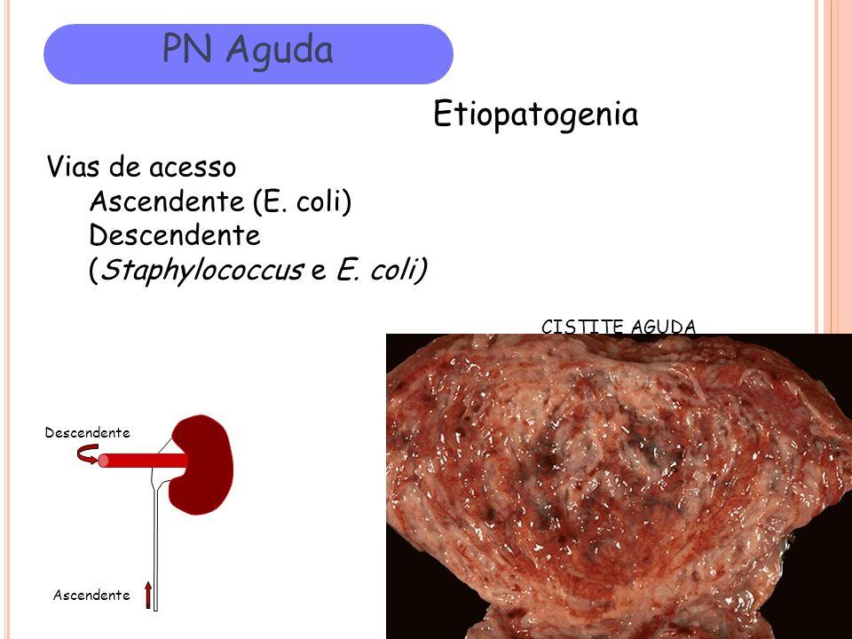PN Aguda Etiopatogenia Vias de acesso Ascendente (E. coli)