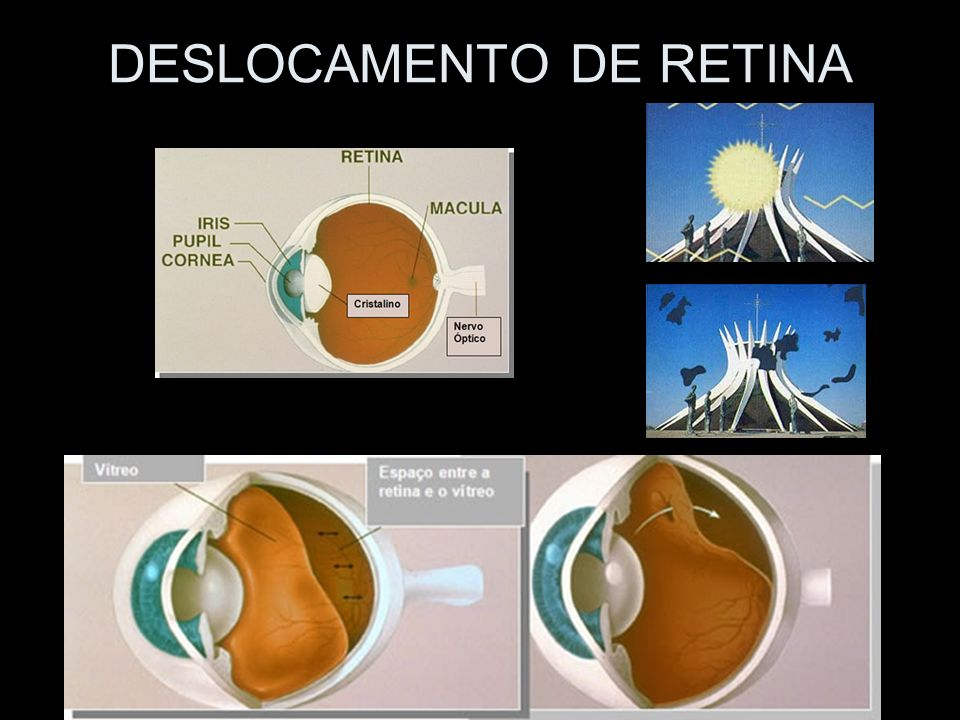 DESLOCAMENTO DE RETINA