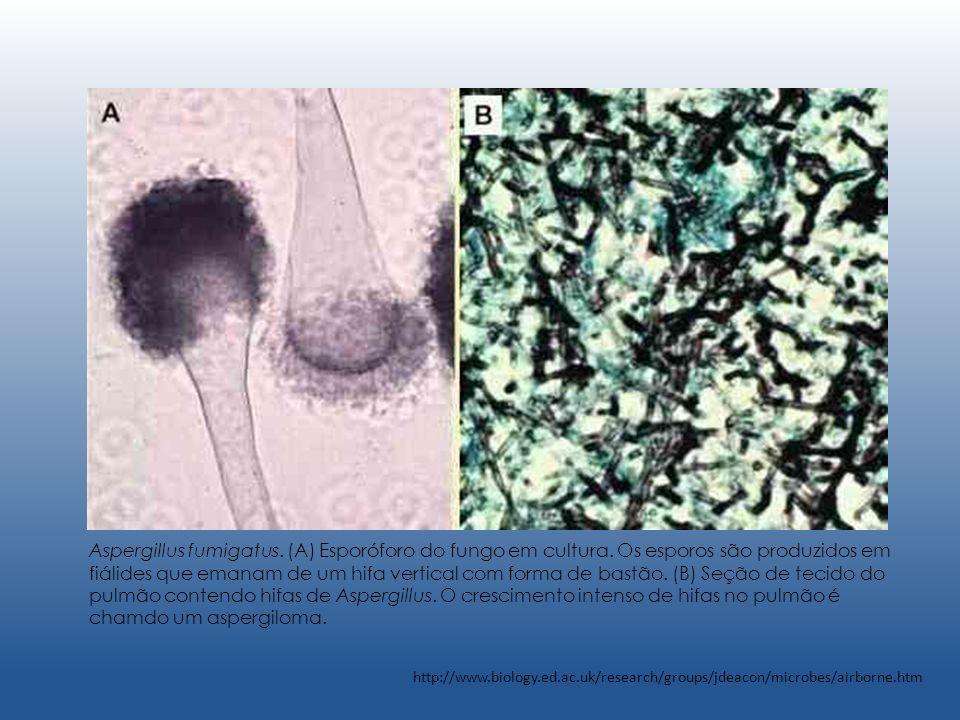 Aspergillus fumigatus. (A) Esporóforo do fungo em cultura