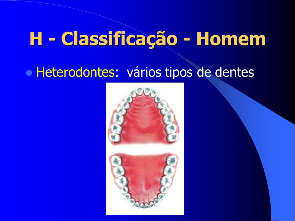 H - Classificação - Homem