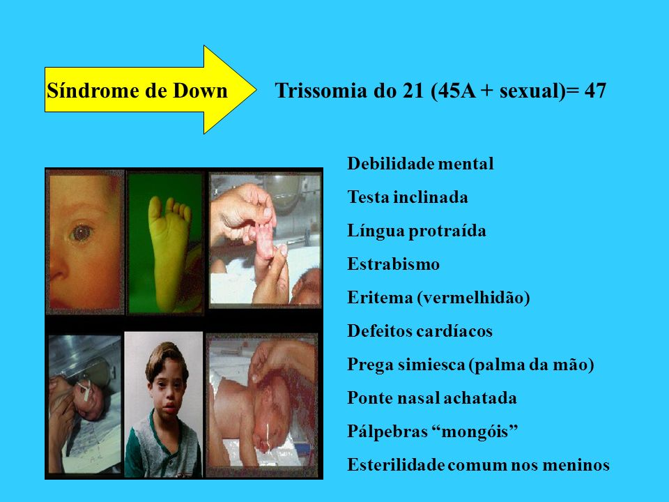Trissomia do 21 (45A + sexual)= 47