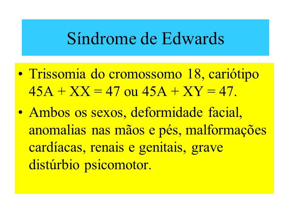 Síndrome de Edwards Trissomia do cromossomo 18, cariótipo 45A + XX = 47 ou 45A + XY = 47.